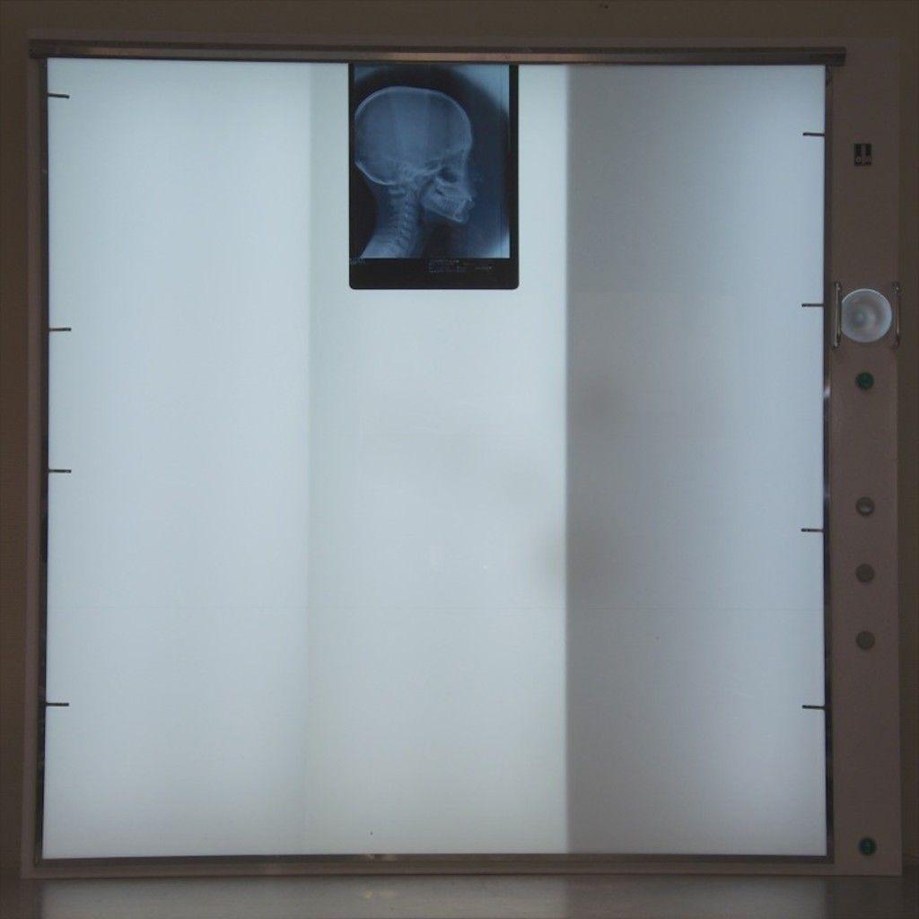 X-RAY VIEWER ELLA MULTIPLAGES 115x118 CM